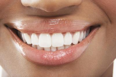 close up of beaming smile with straight teeth I invisalign in wilmington de