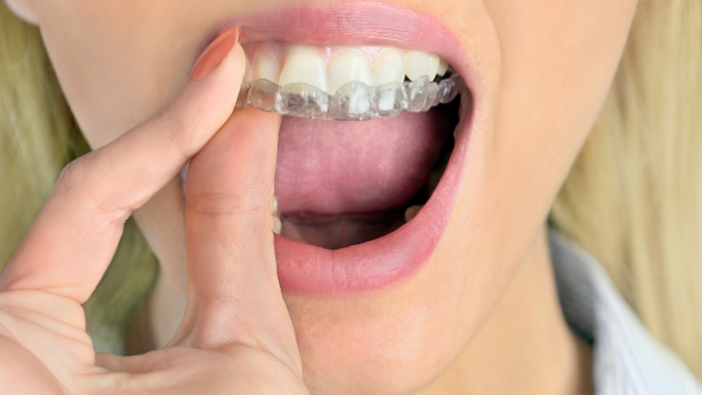 Invisalign For Adults | Clear Braces Wilmington DE