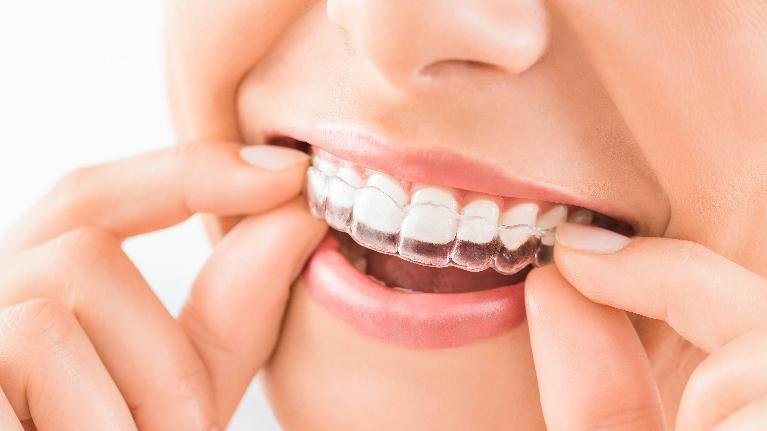 invisalign wilmington de