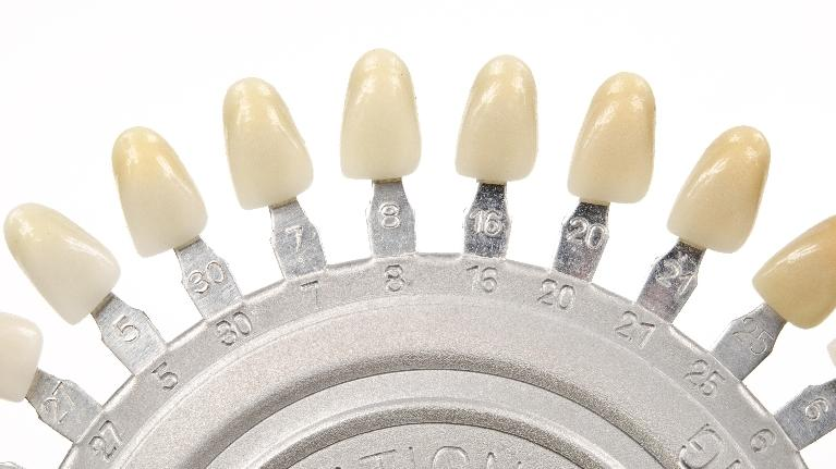 a row of test crowns | Zirconia Crowns Wilmington DE