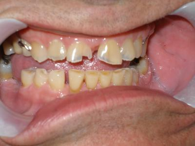 Close up of patients with chipped teeth and decay at 19810 dentist office