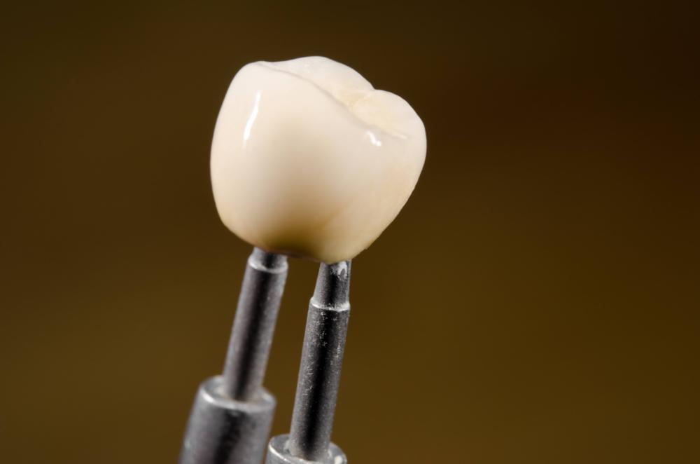 An image of a crown being held in plyers | Dental Implant Restoration Wilmington DE