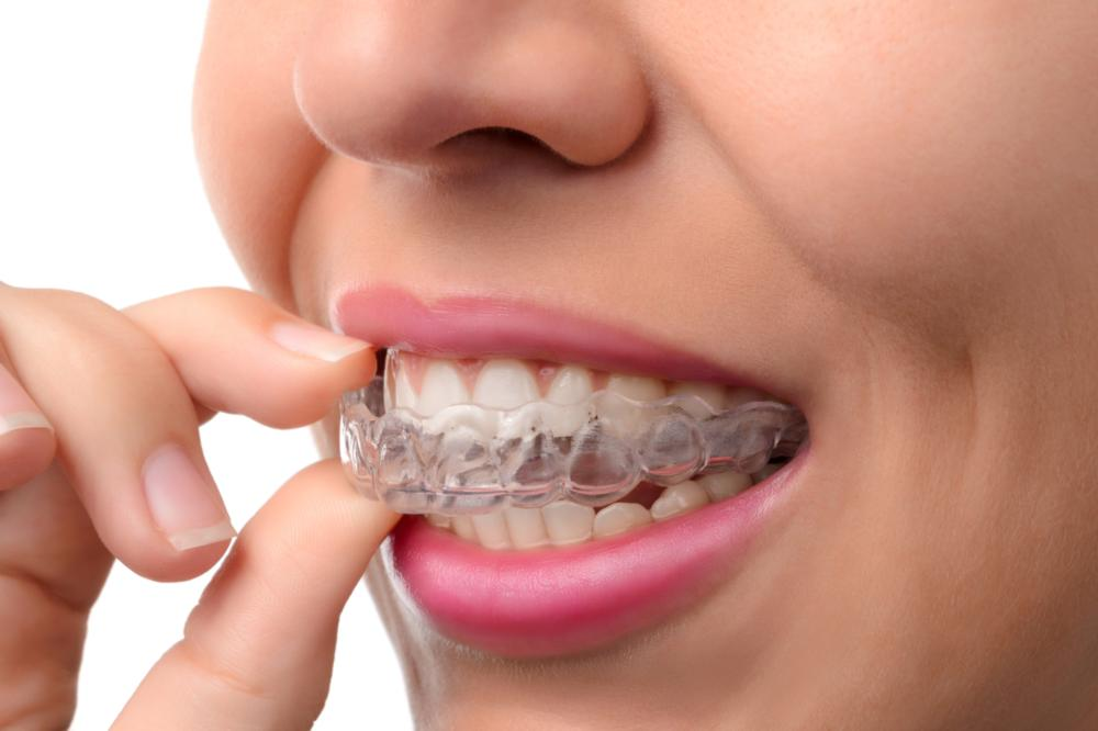 Invisalign & Six Month Smiles Wilmington DE