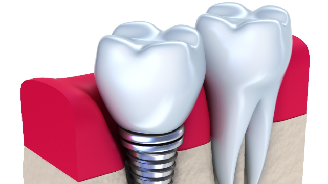 Dental Implants Wilmington DE | Filling In Missing Teeth