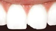 Cosmetic-Dental-Bonding-Before-Image
