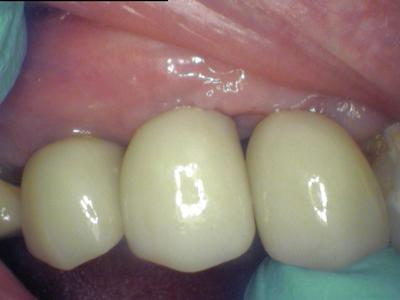 Natural Looking Dental Implants