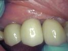 Natural-Looking-Dental-Implants-After-Image