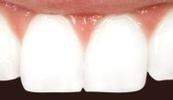 Cosmetic-Dental-Bonding-After-Image