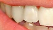 A-Smile-Brightened-With-Professional-Teeth-Whitening-Before-Image