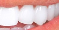 A Smile Brightened With Professional Teeth Whitening