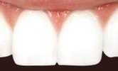 A-Chipped-Front-Tooth-Fixed-With-Cosmetic-Dental-Bonding-After-Image