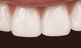 A-Patient-s-Front-Teeth-Brought-Together-With-A-Six-Month-Smiles-Spacing-Treatment-After-Image