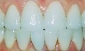 A-Smile-Transformed-With-A-Full-Mouth-Cosmetic-Treatment-After-Image