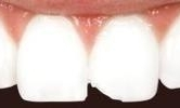 A-Chipped-Front-Tooth-Fixed-With-Cosmetic-Dental-Bonding-Before-Image