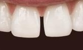 A-Patient-s-Front-Teeth-Brought-Together-With-A-Six-Month-Smiles-Spacing-Treatment-Before-Image