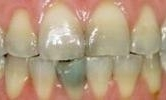 A-Smile-Transformed-With-A-Full-Mouth-Cosmetic-Treatment-Before-Image